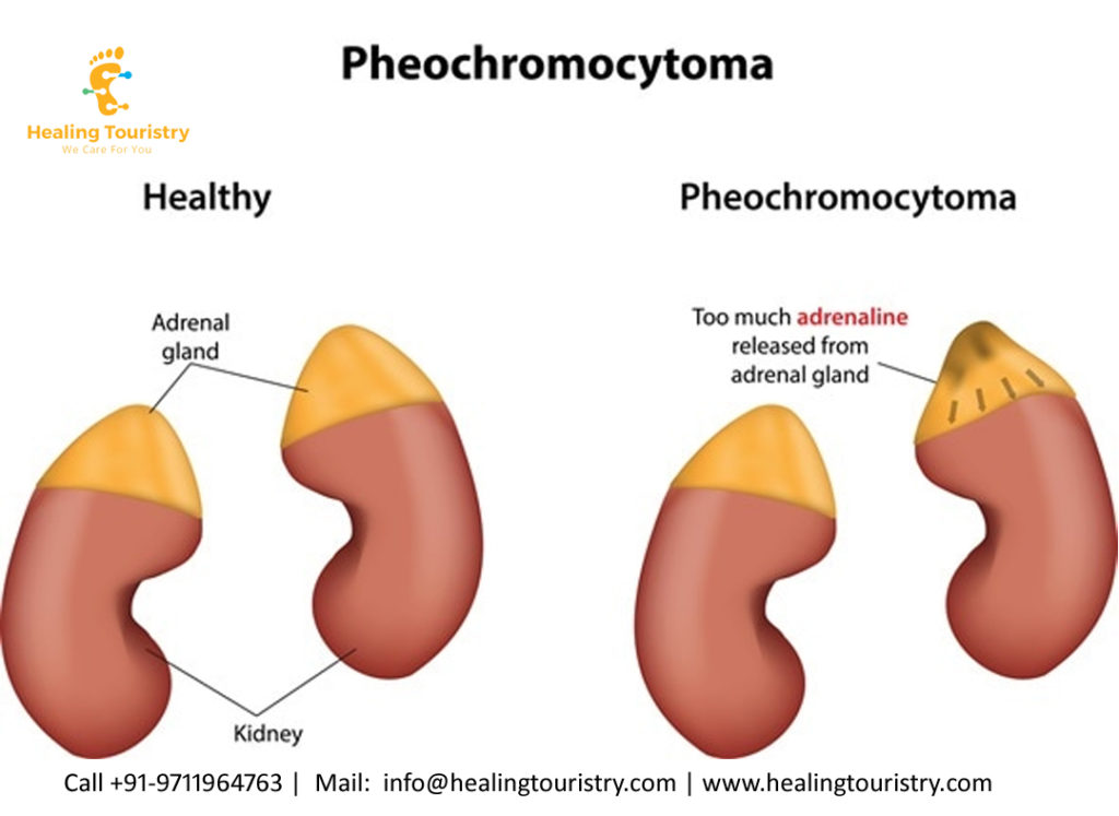 pheochromocytoma treatment in India