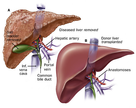 Liver Transplant in India