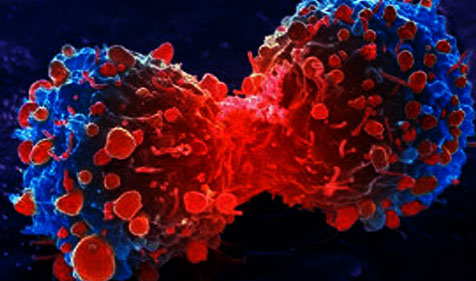 Know All About Cancer and it's Treatment in India - Medical Tourism