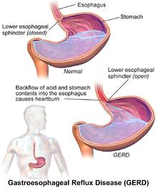 Gastroesophageal Reflux Disease GERD Treatment