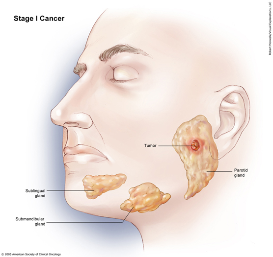 Adenocarcinoma - Glandular Cancer Treatment