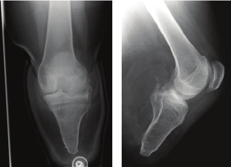 Amputation - Below Knee