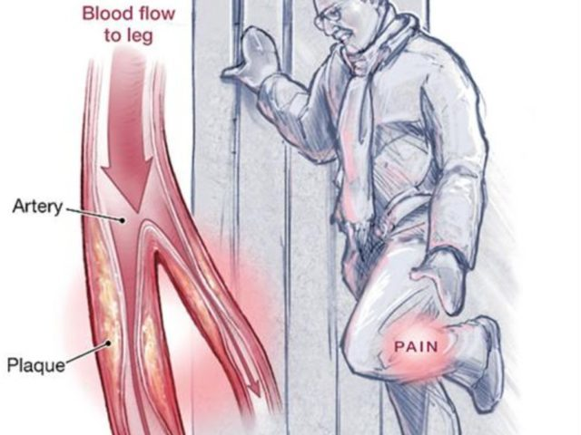Peripheral Angioplasty Procedure