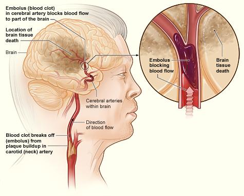Blood Clot Brain Surgery