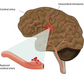 Brain Haemorrhage Treatment
