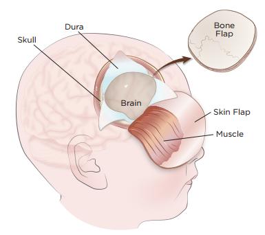Craniotomy Surgery