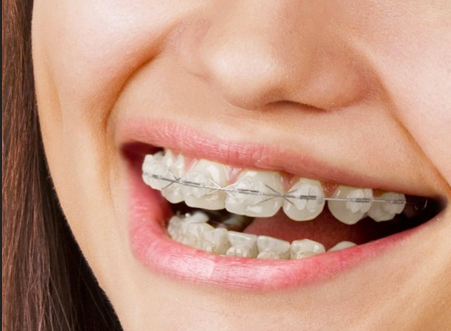 Ceramic Braces Treatment