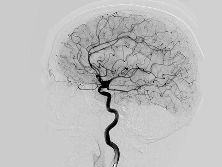 Cerebral Angiogram procedure