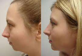Chin Implant Surgery