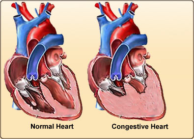 Pediatric Congestive Heart Failure (CHF) Treatment