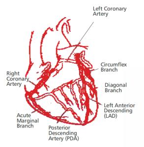 Coronary Angiogram Treatment