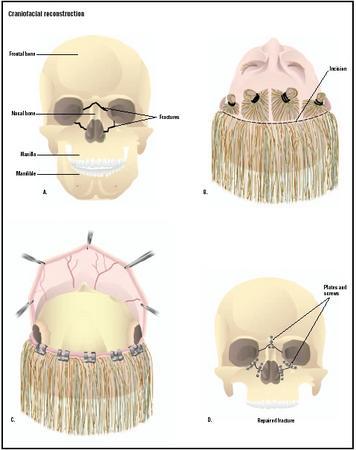 Craniofacial Reconstruction Surgery