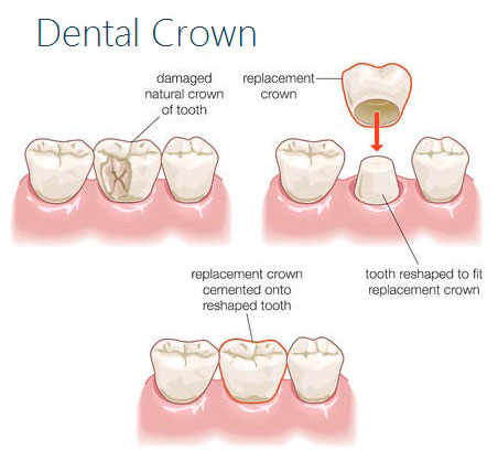 Dental Crowns and Caps Procedure
