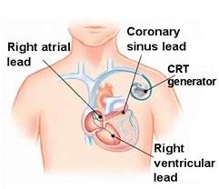 CRT- D Implant (Cardiac Resynchronization Therapy)