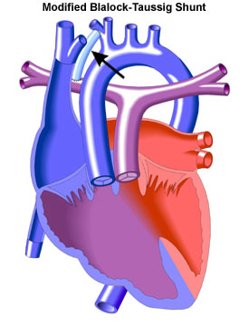 Double Outlet Right Ventricle (DORV) Surgery