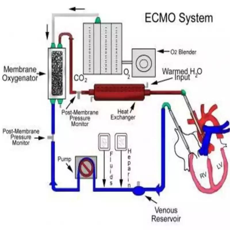 ECMO Support