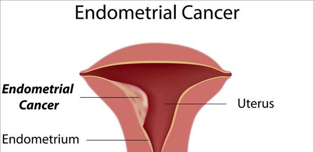 Endometrial Cancer Treatment