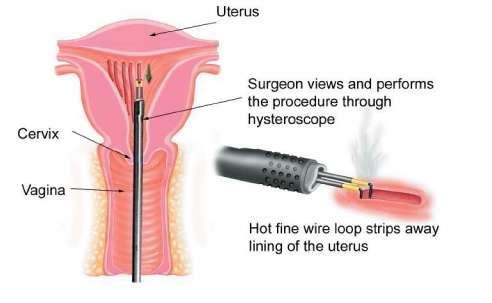 Endometrial Ablation Surgery