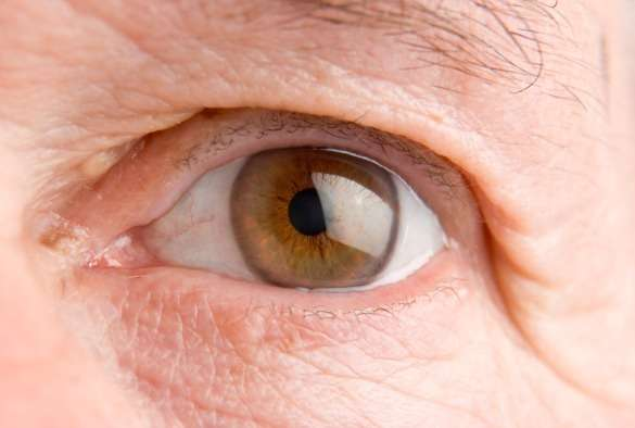 Eye Cancer Treatment