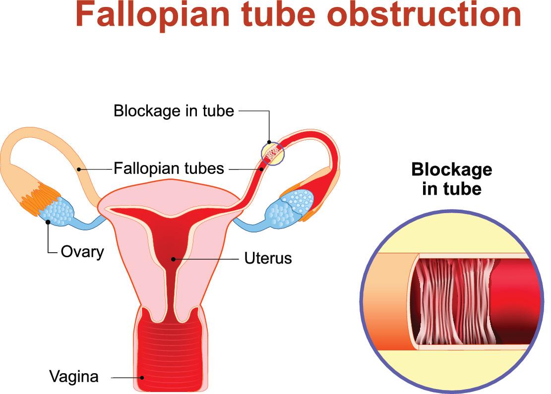Blocked Fallopian Tube Treatment