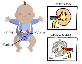 Multicystic Dysplastic Kidney (MCDK) Treatment