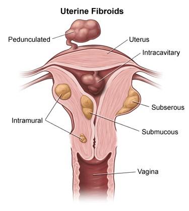 Fibroid removal myomectomy Surgery