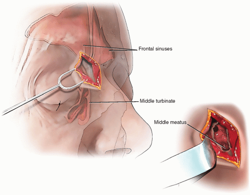 Frontoethmoidectomy Surgery