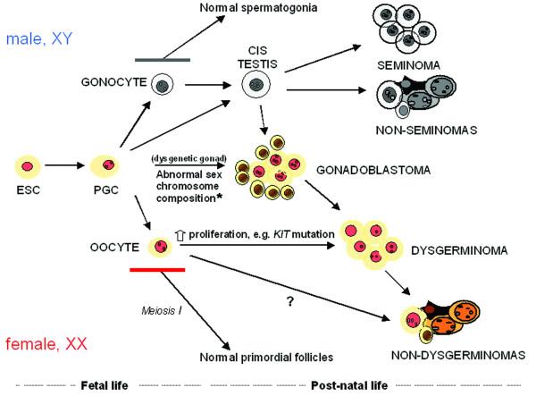 Ovarian Germ Cell Tumor