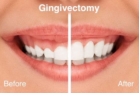 Gum Lifting - Gingivectomy