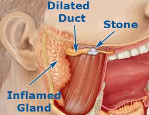 Salivary Gland Stone Removal