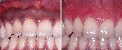 Laser Gum Depigmentation - Gum Bleaching Treatment