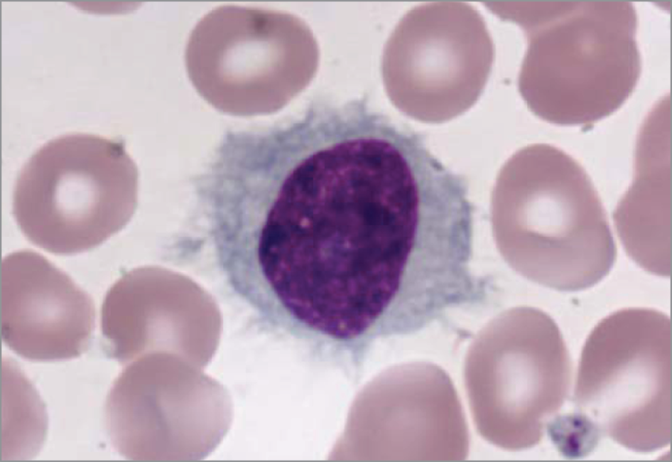 Hairy Cell Leukemia - HCL
