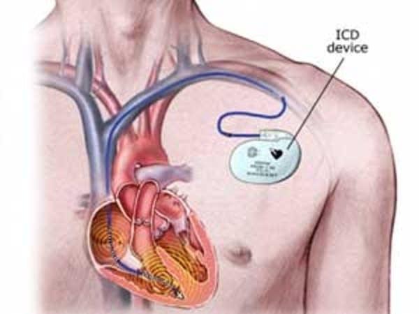 Heart Implants