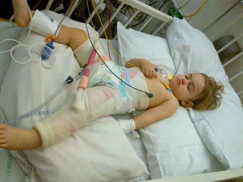 Pediatric Hip Dysplasia Surgery