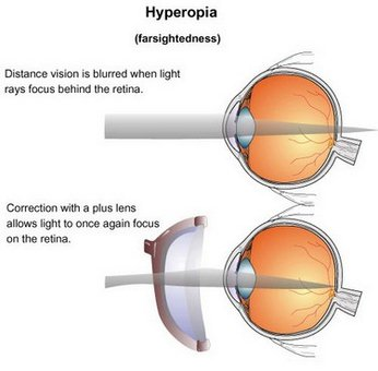 Hyperopia (Farsightedness) Treatment