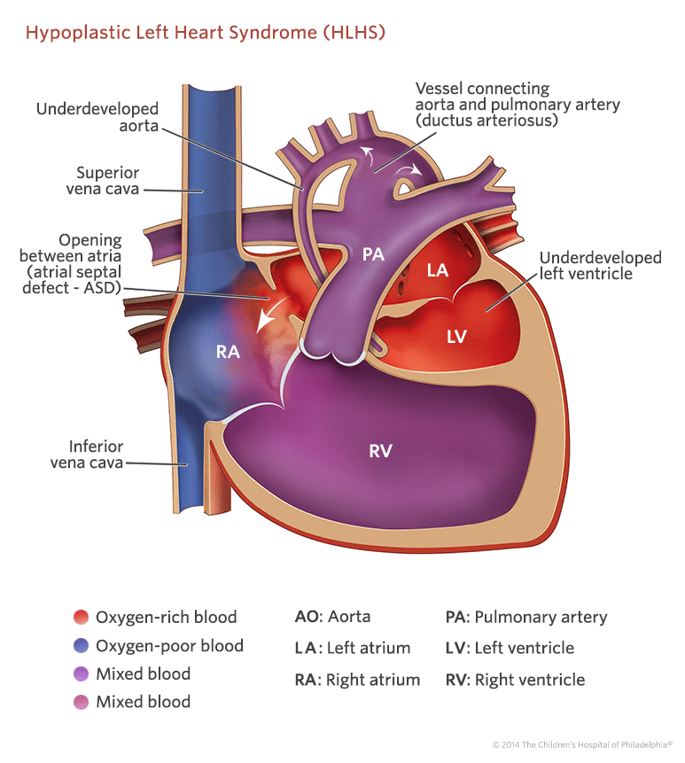 Hypoplastic Left Heart Syndrome (HLHS) Treatment