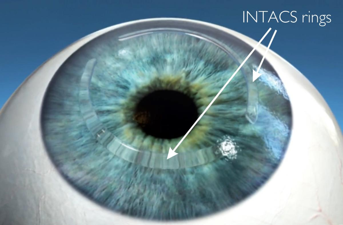 Intacs Corneal Implants