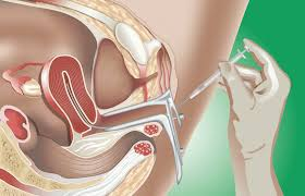 IUI - Intrauterine Insemination