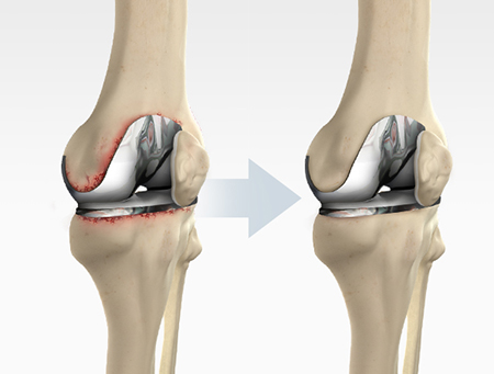 Revision Single Knee Replacement Surgery