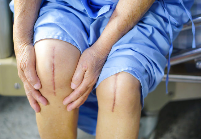 Both Knee Replacement together