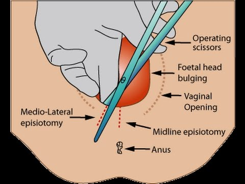 Labiaplasty (Labia Rejuvenation) Surgery