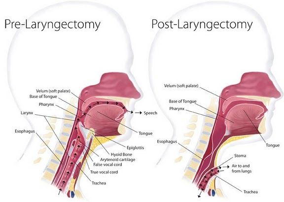 Laryngectomy Surgery