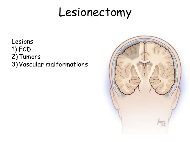 Lesionectomy