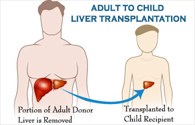 Pediatric Liver Transplant Surgery