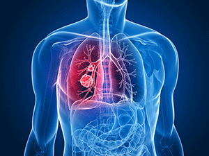 Lung Carcinoid Tumor Treatment