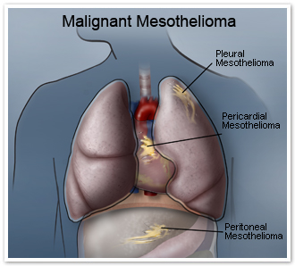 Malignant Mesothelioma Treatment