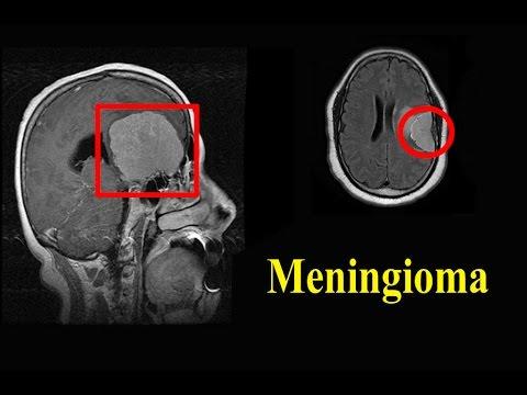 Meningioma Treatment