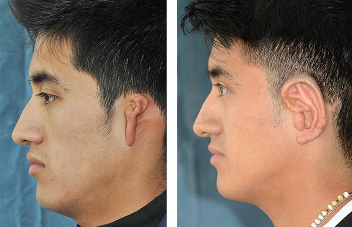 Microtia Surgery