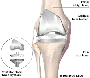 Minimally Invasive Knee Replacement Surgery