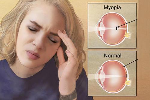 Myopia (Nearsightedness) Treatment